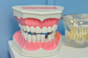 The varieties Invisalign 37