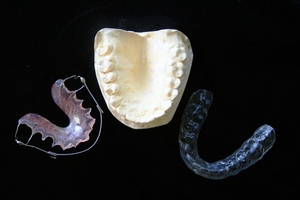 Variety of Invisalign 38