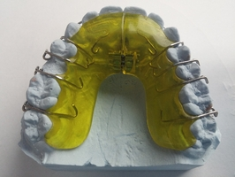 Information about Invisalign 8